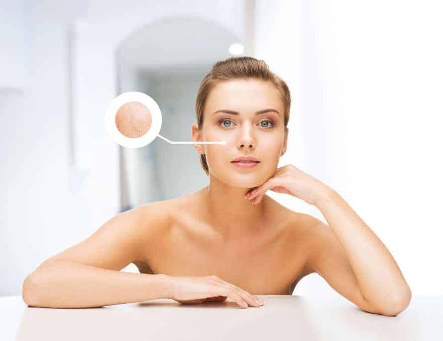Aceites esenciales piel seca